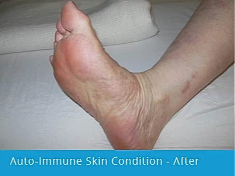 Auto-Immune Skin Condition on Foot: after picture