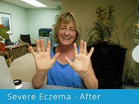 Severe Eczema: after picture