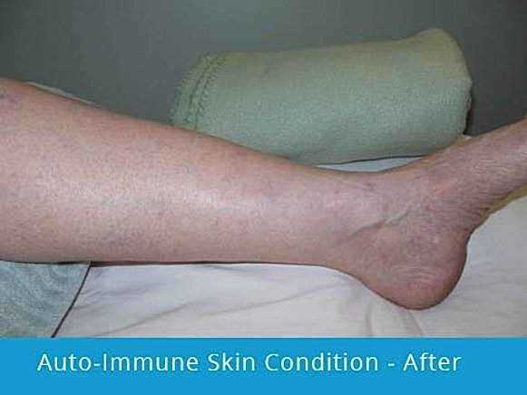 Auto-Immune Skin Condition: after picture