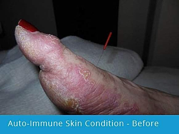 Auto-Immune Skin Condition on foot: before picture